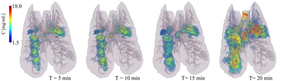 lung3d.jpg